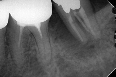 大きな透過像がある樋状根の治療
