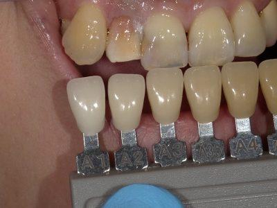 ウォーキングブリーチ(神経を取った歯を漂白)