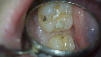 スライスカットしてある歯のコンポジットレジン修復