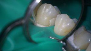 虫歯は、横から詰めるか上から詰めるか