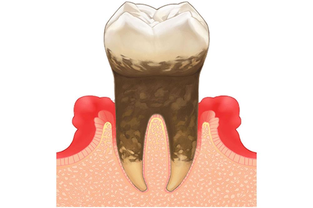 歯周病の悪化