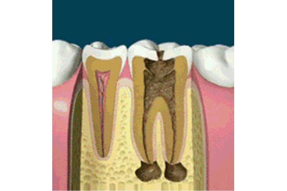 歯根破折などの根の病気