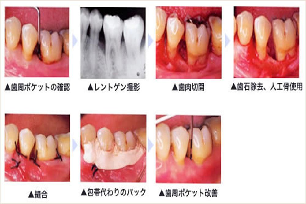 重度歯周病治療に対応