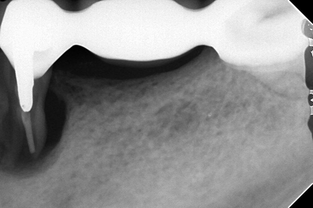 歯が折れた時のレントゲン