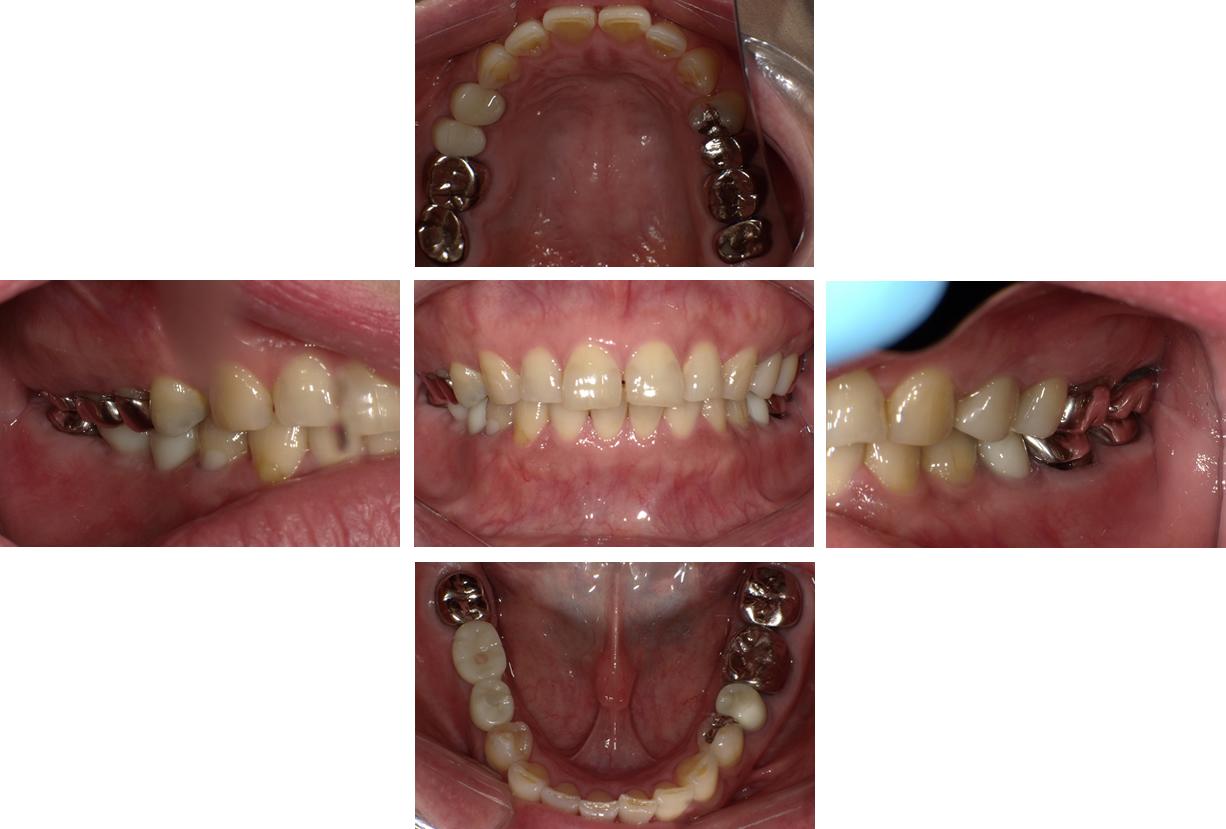 セミラック歯を被せて治療完了