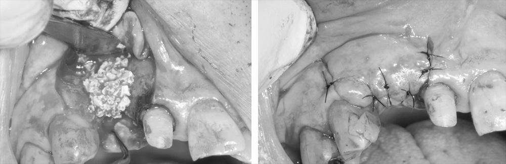 難易度の高い前歯部インプラント症例