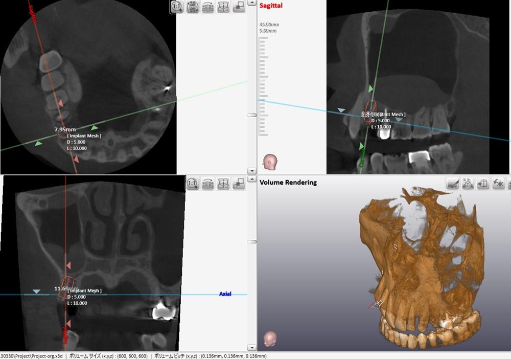 CTによるインプラント埋入ポジション確認