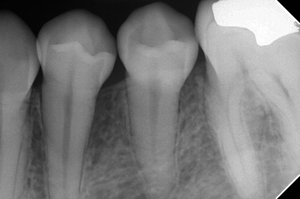 歯周再生療法後