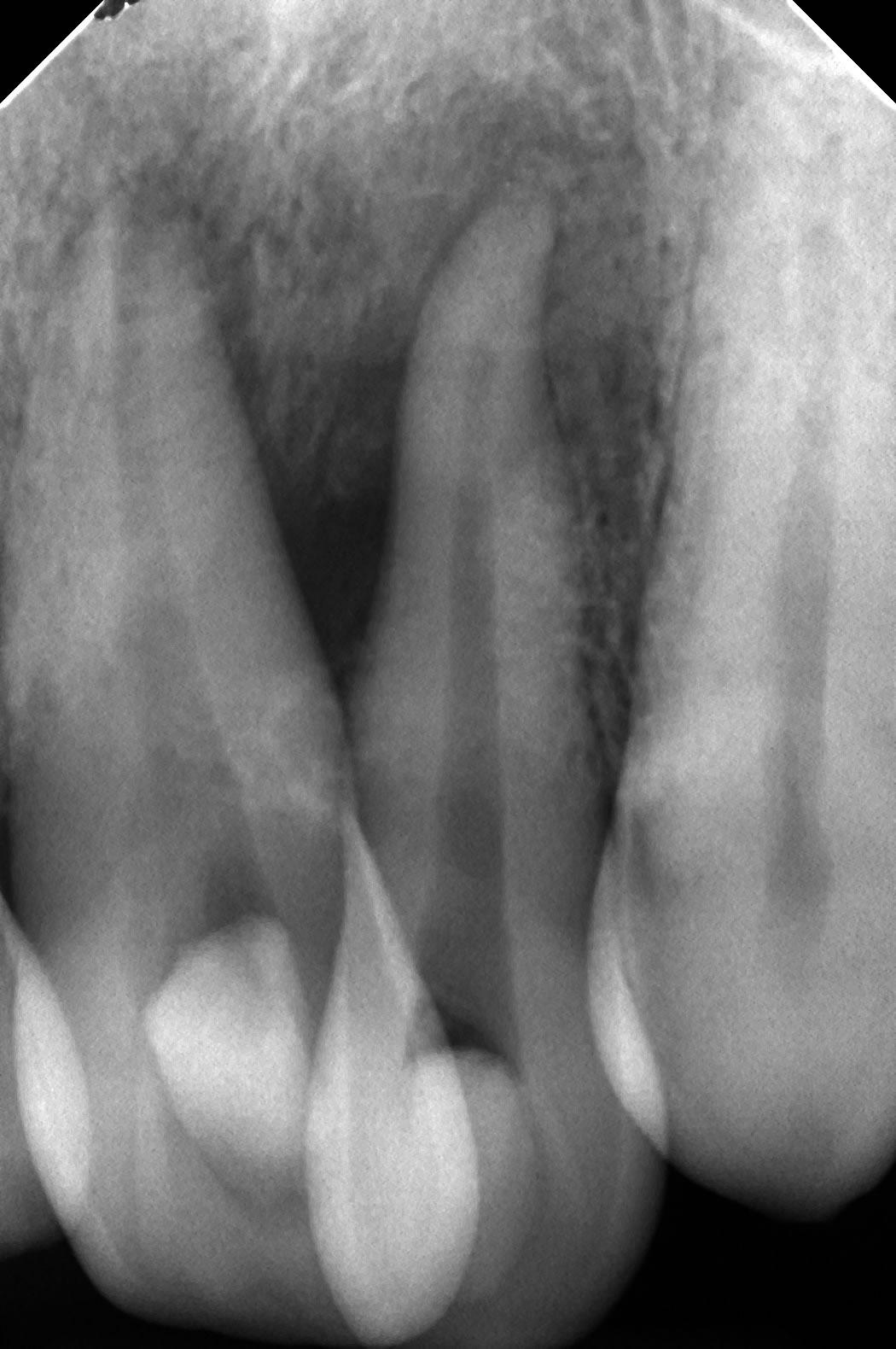 歯周病で骨が溶ける